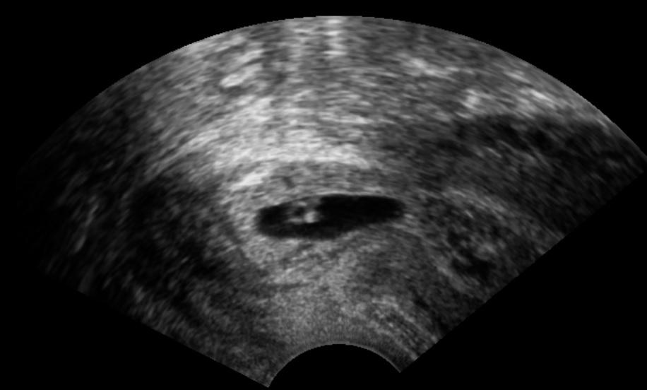 Cervical_pregnancy
